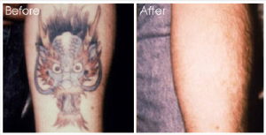 tattoo-removal1