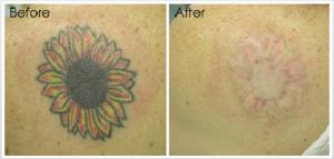 tattoo-removal2
