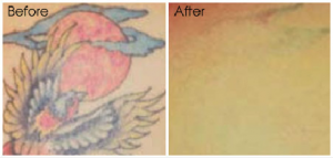tattoo-removal3