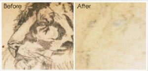 tattoo-removal4