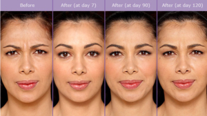 Botox-Before-After-Oxnard-Ventura-Celebrating-Women-Adrienne-Lara