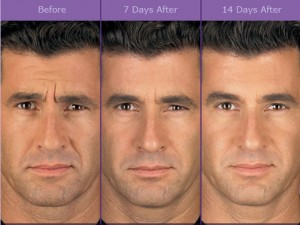 botox_beforeafter3