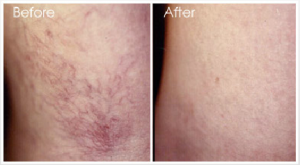 sclerotherapy3