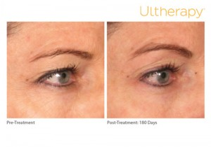 ultherapy_0221k-m_beforeandafter_brow_low-res
