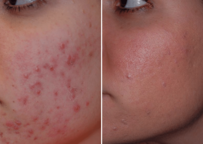 vbeam laser before-afters