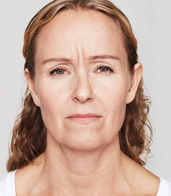 Frown before Dysport treatment